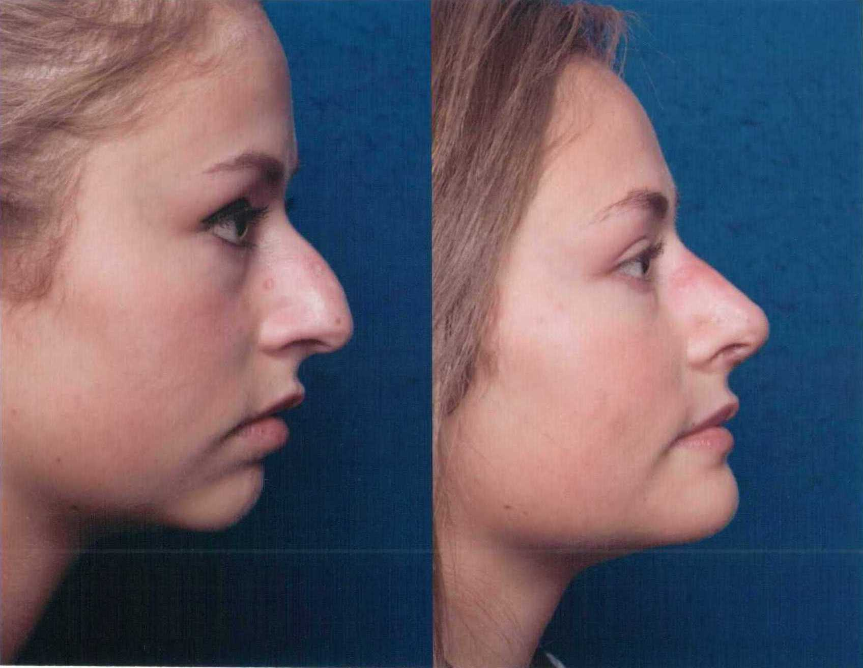 The Nose Clinic Before And After Nose Surgery Photos 48